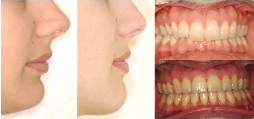 ostéotomie mandibulaire
