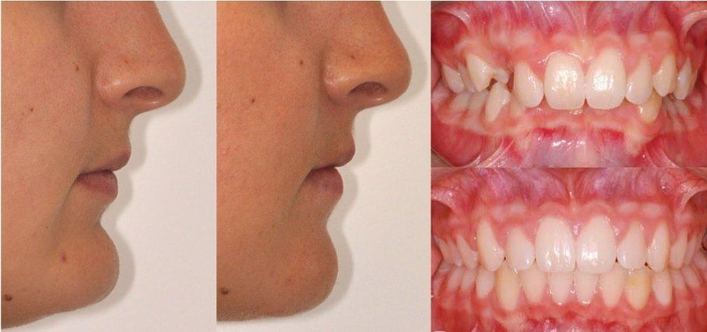 ostéotomie maxillo-mandibulaire et génioplastie