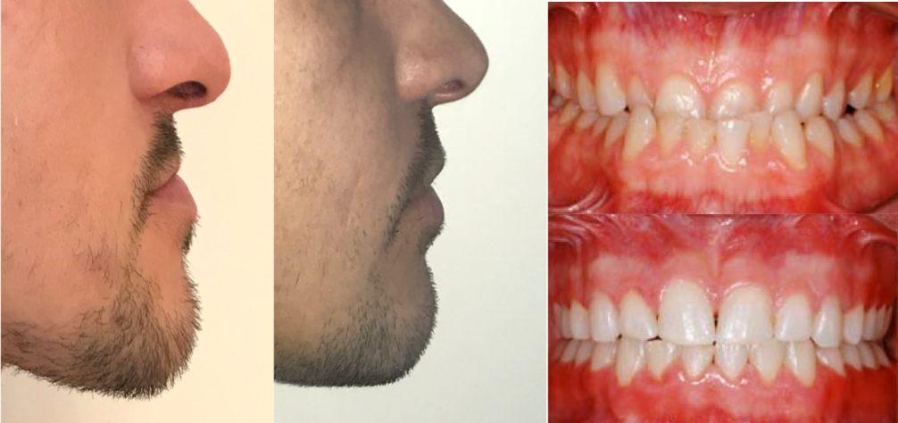 ostéotomie maxillo-mandibulaire